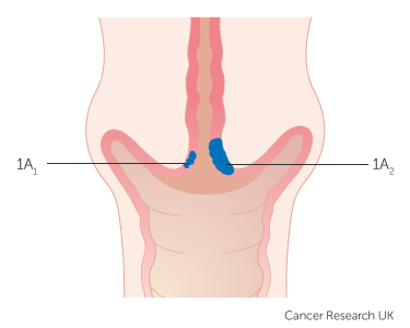 cervical cancer treatment stage 1 test papilloma per uomo