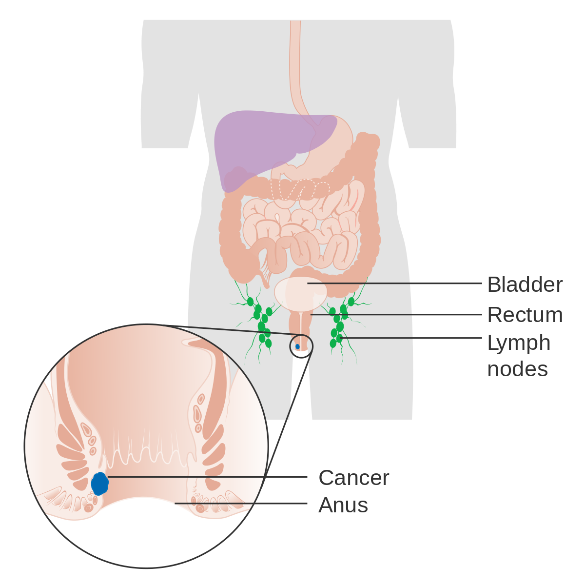 papilloma virus nellano
