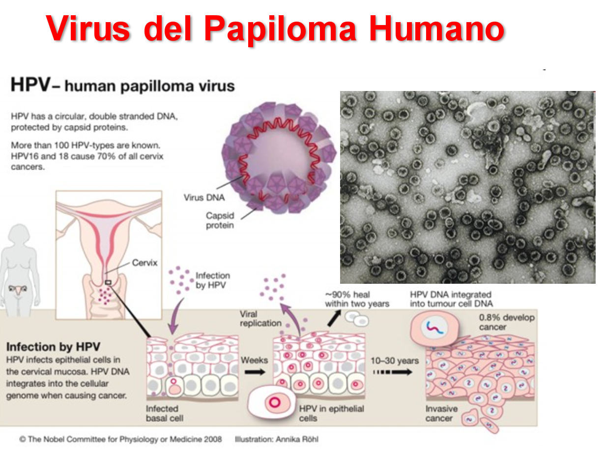 perianal squamous papilloma oxiuros in ingles