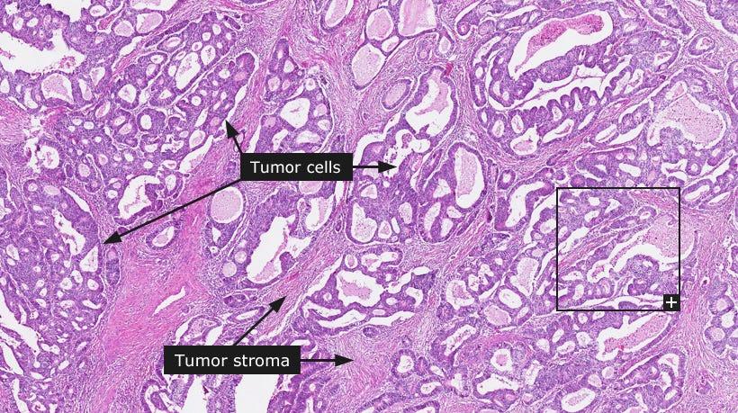 virus papiloma humano y vih