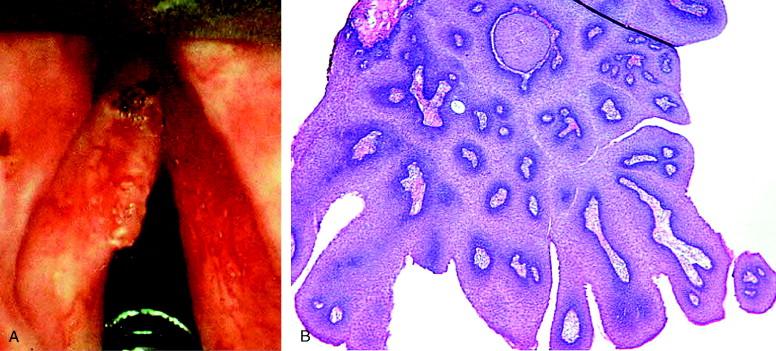 complications of juvenile papillomatosis