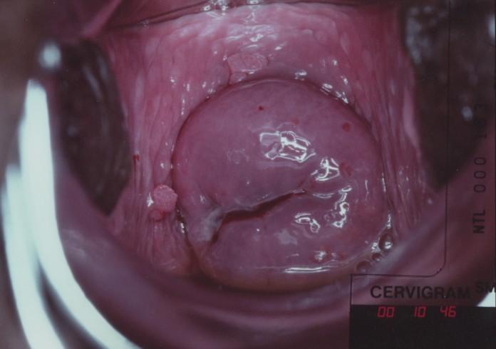 the human papillomavirus life cycle papilloma intraductal breast
