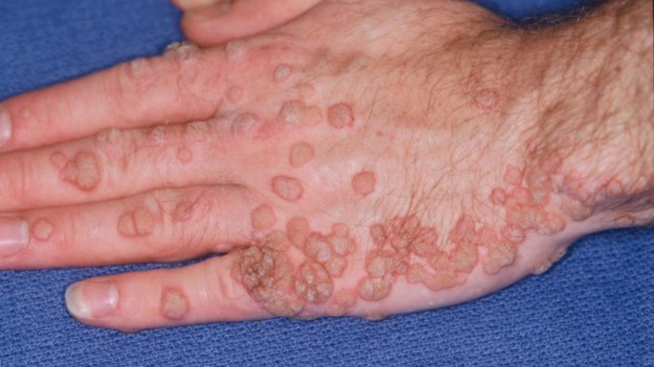 hpv cancer yeast infection zodia cancerului sadoveanu