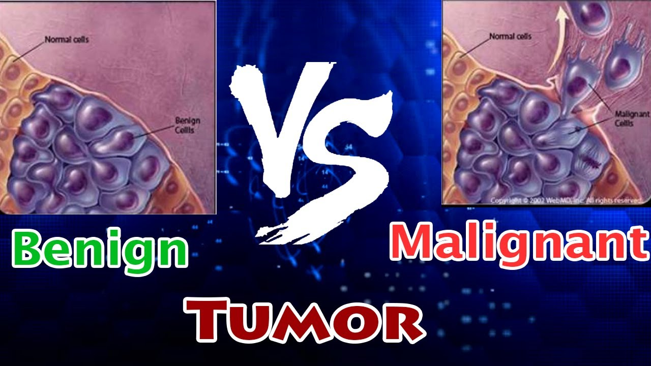 cancer malign vs benign detoxifierea ficatului dupa antibiotice