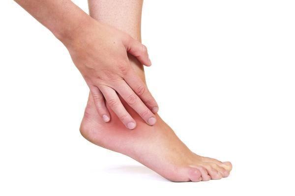 varicoasă dureroasă pe vârful piciorului de ce picioarele se umflă în timpul perioadelor