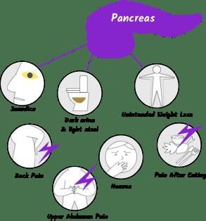 que es los papilomas precancerous cells without hpv