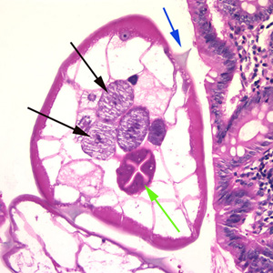 ovarian enterobiasis virus papiloma en garganta sintomas