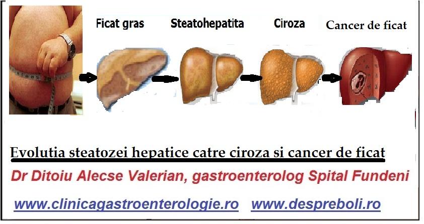 virus papilloma cure intraductal papilloma homeopathic