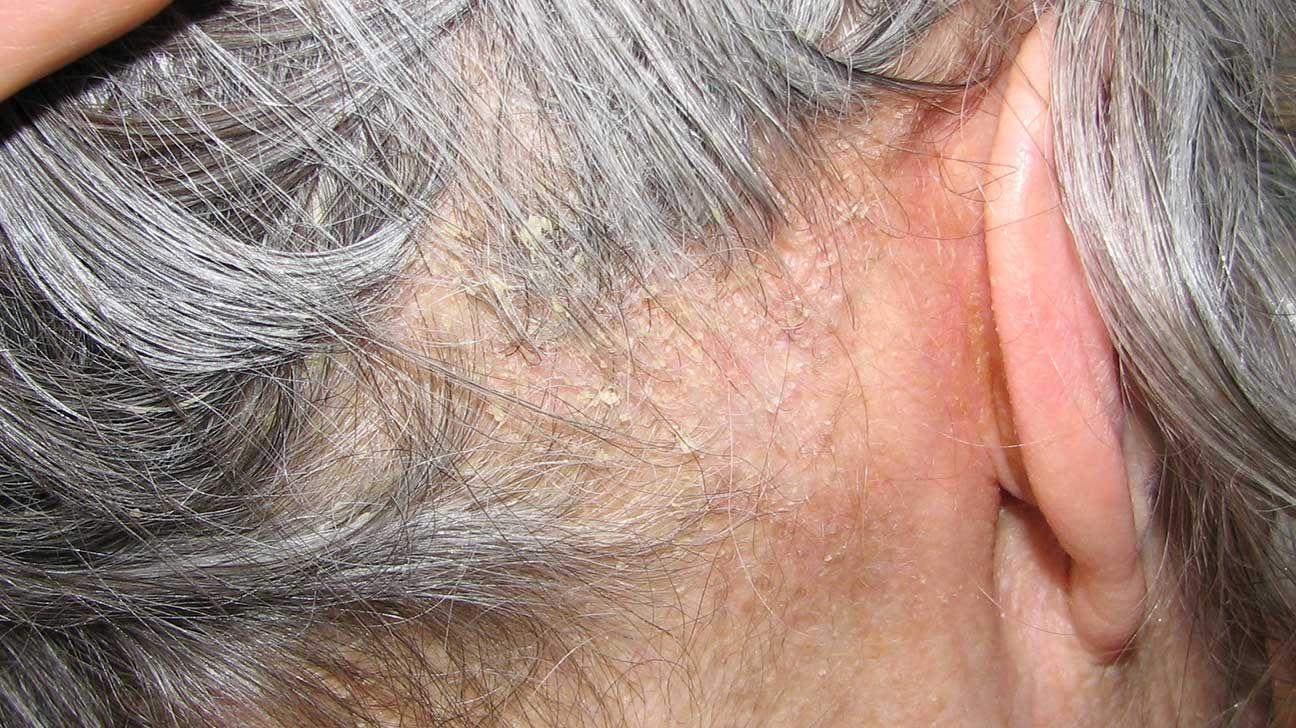 hpv wart horns papilloma virus positivo e pap test positivo