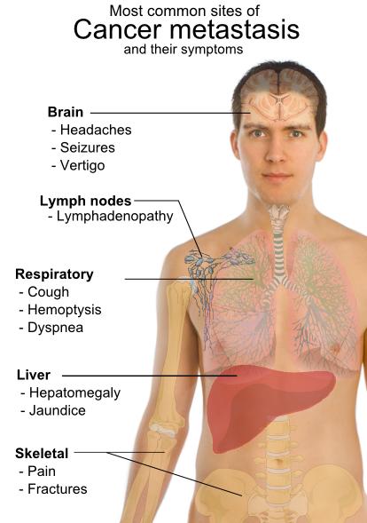 cancer la gat sanse de supravietuire