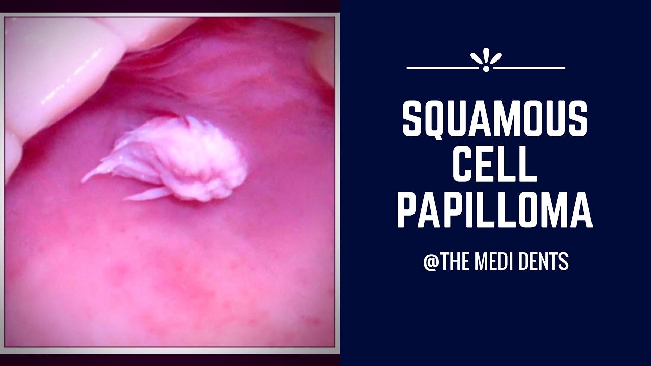 squamous papilloma nedir human papillomavirus vaccination the population impact