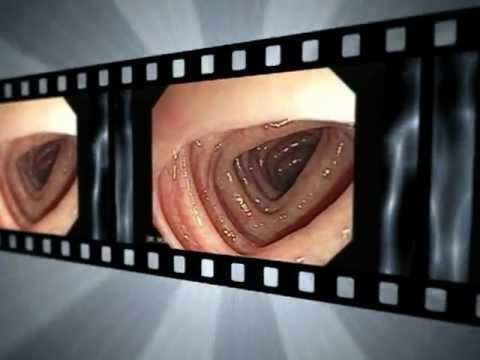 cancer colon y hemorroides