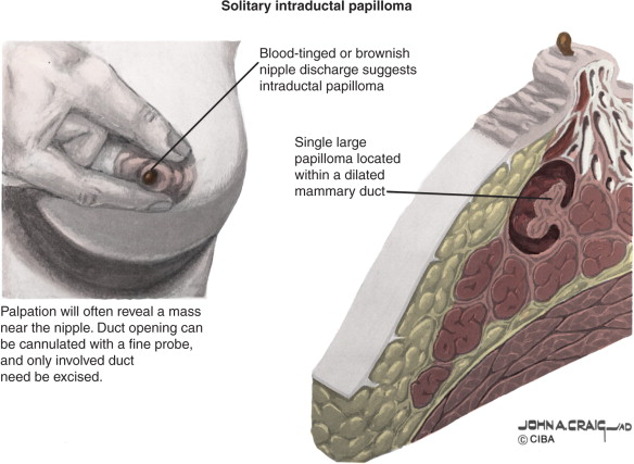 intraductal papillomas also known as