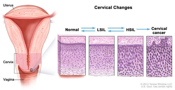 does hpv cause precancerous cells