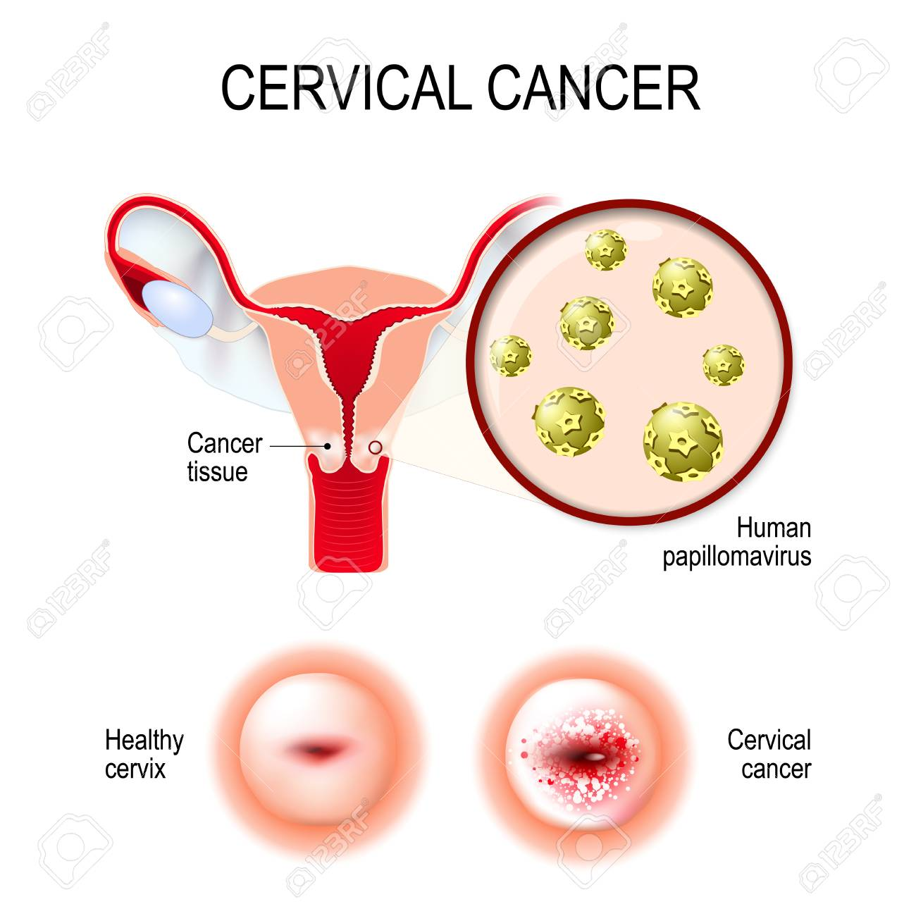 does hpv cause uterine cancer