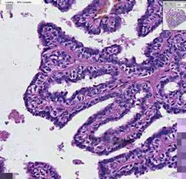 papillary proliferative lesion