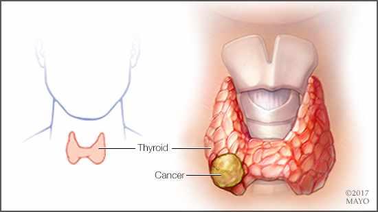 papillary thyroid carcinoma que es oxiuros tratamiento en perros
