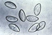 kindermadenwurm (enterobius vermicularis) ectasia ductal papilloma