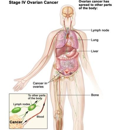 Comprehensive staging in ovarian cancer