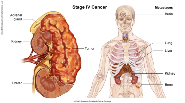 renal cancer on lungs hpv virus pap test
