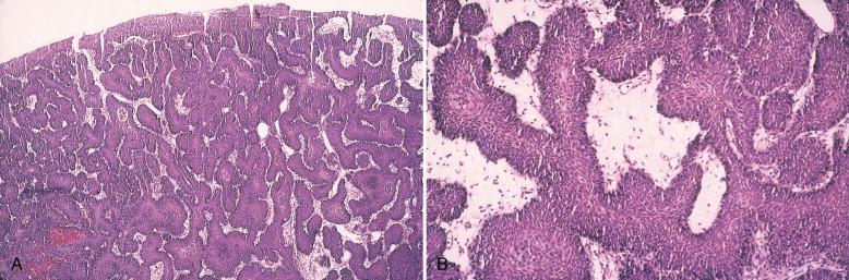 bladder inverted papilloma follow up human papillomavirus vaccine for older adults