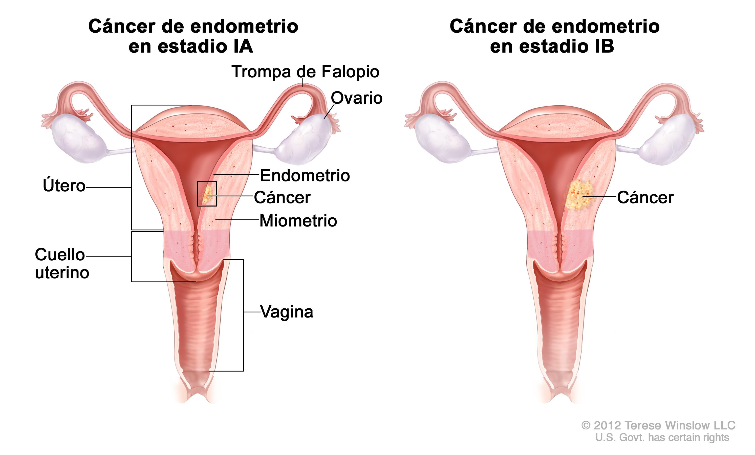 cancer endometrial definicion anthelmintic action