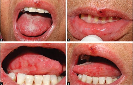 cancerul bucal doare