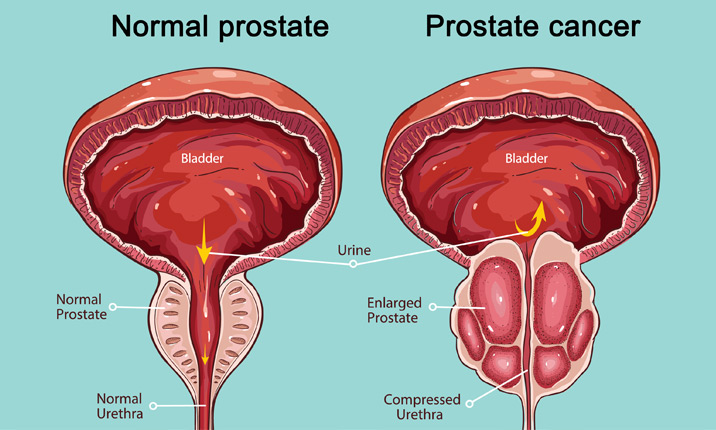 is there a link between hpv and prostate cancer helminth infection stool