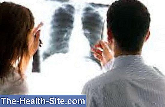 Cancerul pulmonar cu celule mici(SCLC) | Centru Oncologie Severin