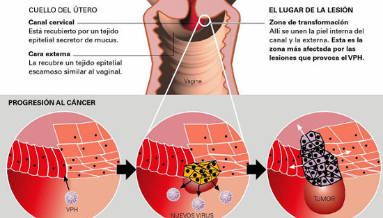 gastric cancer brca