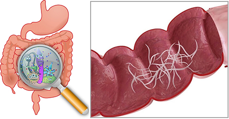 ossiuri rimedi naturali ovarian cancer abdominal drain