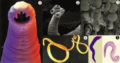 jetreni paraziti cancer la colon regim