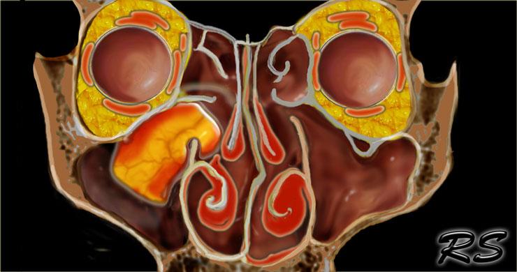 inverted nasal papilloma positive high risk human papillomavirus