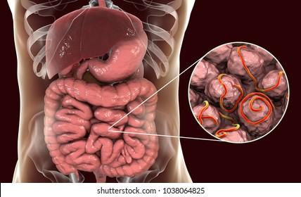 enterobius vermicularis in brain parazit giardia lamblia simptome