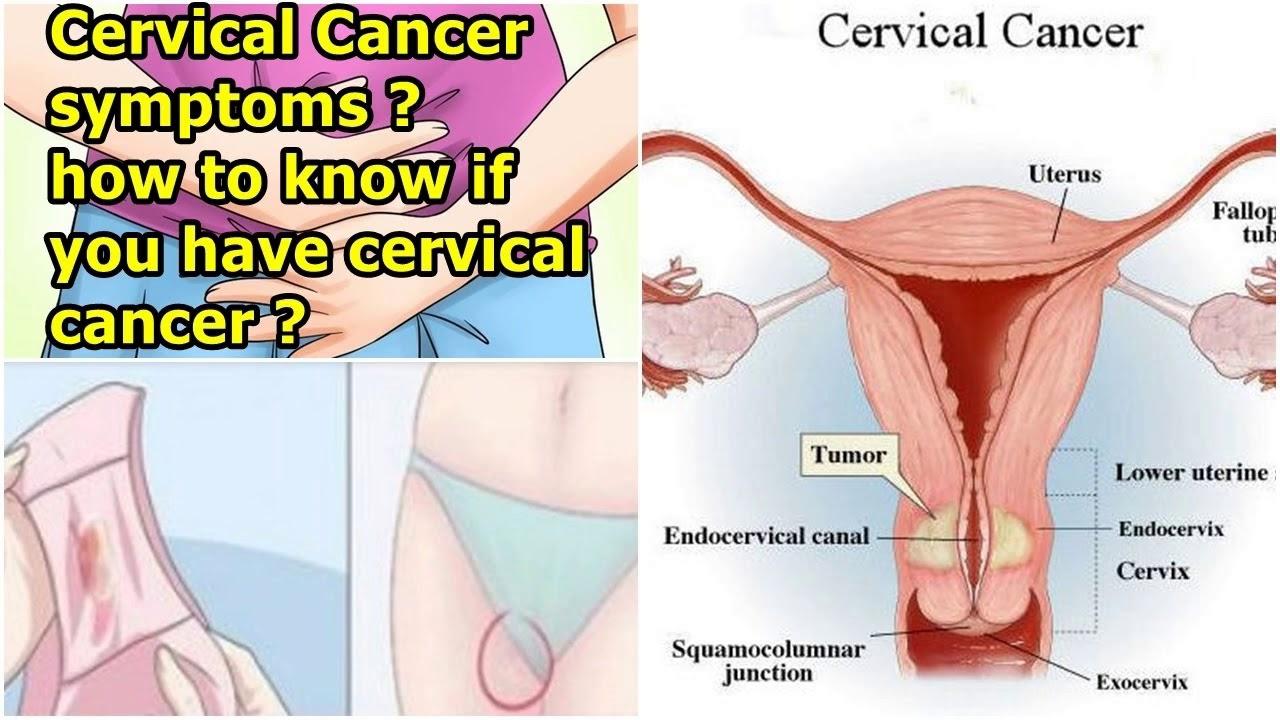 cancerul pancreatic tratament neuroendocrine cancer prevention