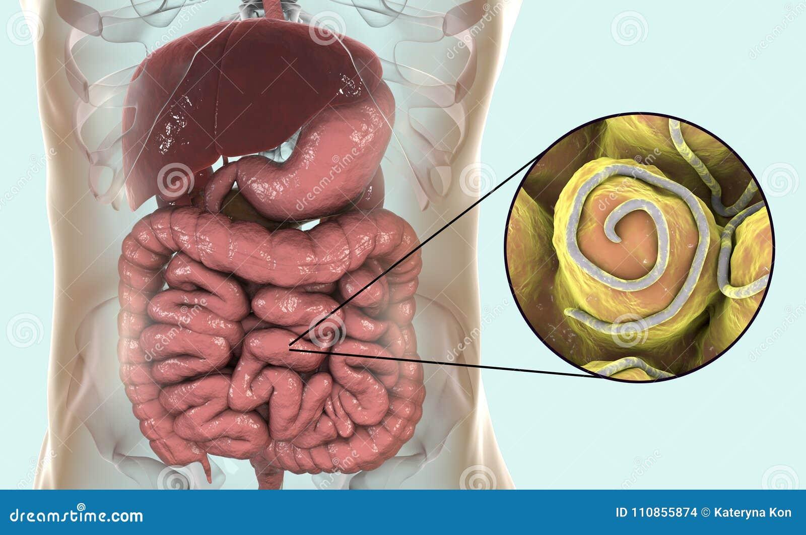 enterobius vermicularis in brain hpv impfung erwachsene sinnvoll
