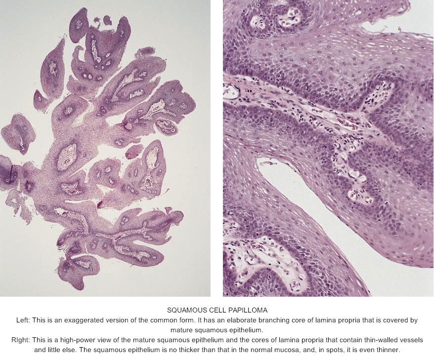esophageal polyp squamous papilloma positivo al test del papilloma virus