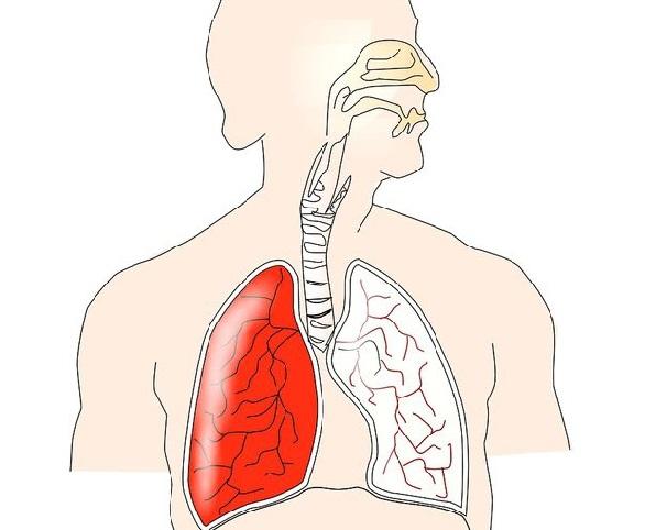 cancer plamani tuse parazitii intestinali si balonarea