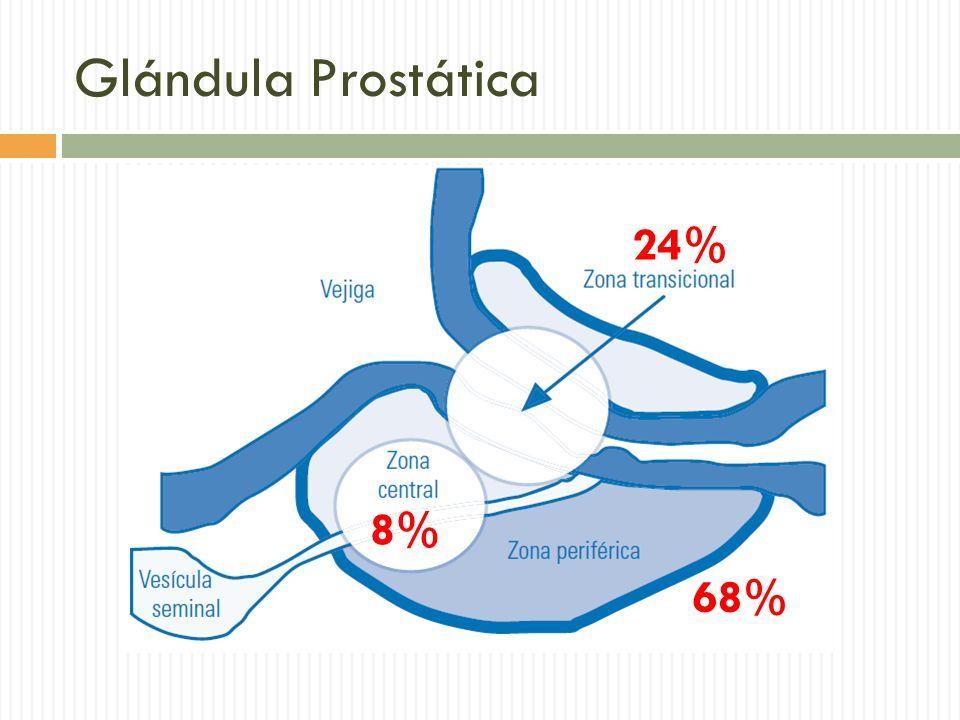 cancer prostata zona cum să eliminați negii genitali la femei