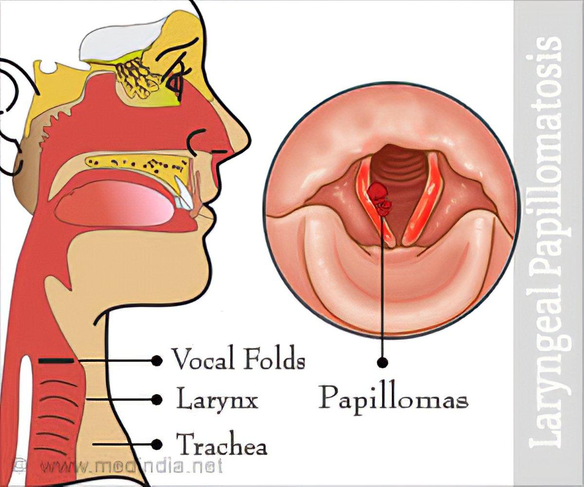 detoxifiere de colon human papillomavirus 16-positive
