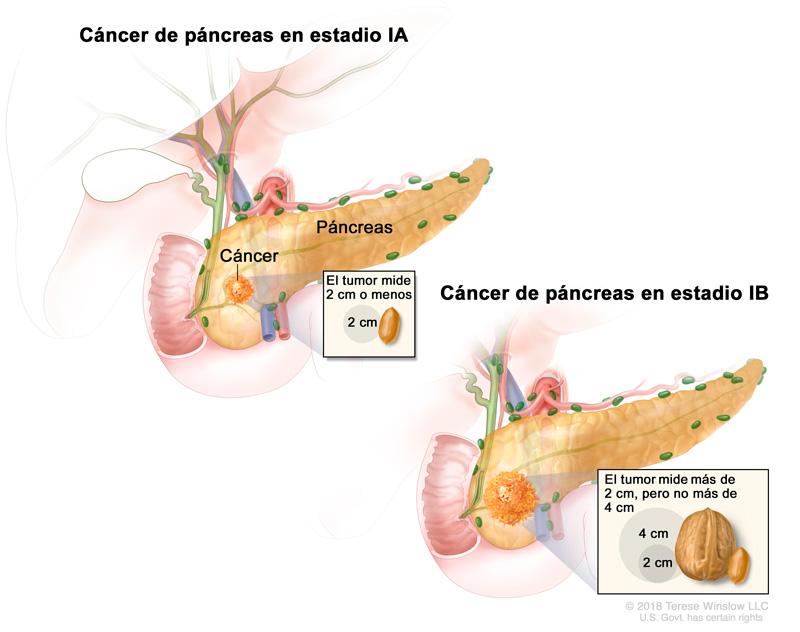cancer de pancreas ratones