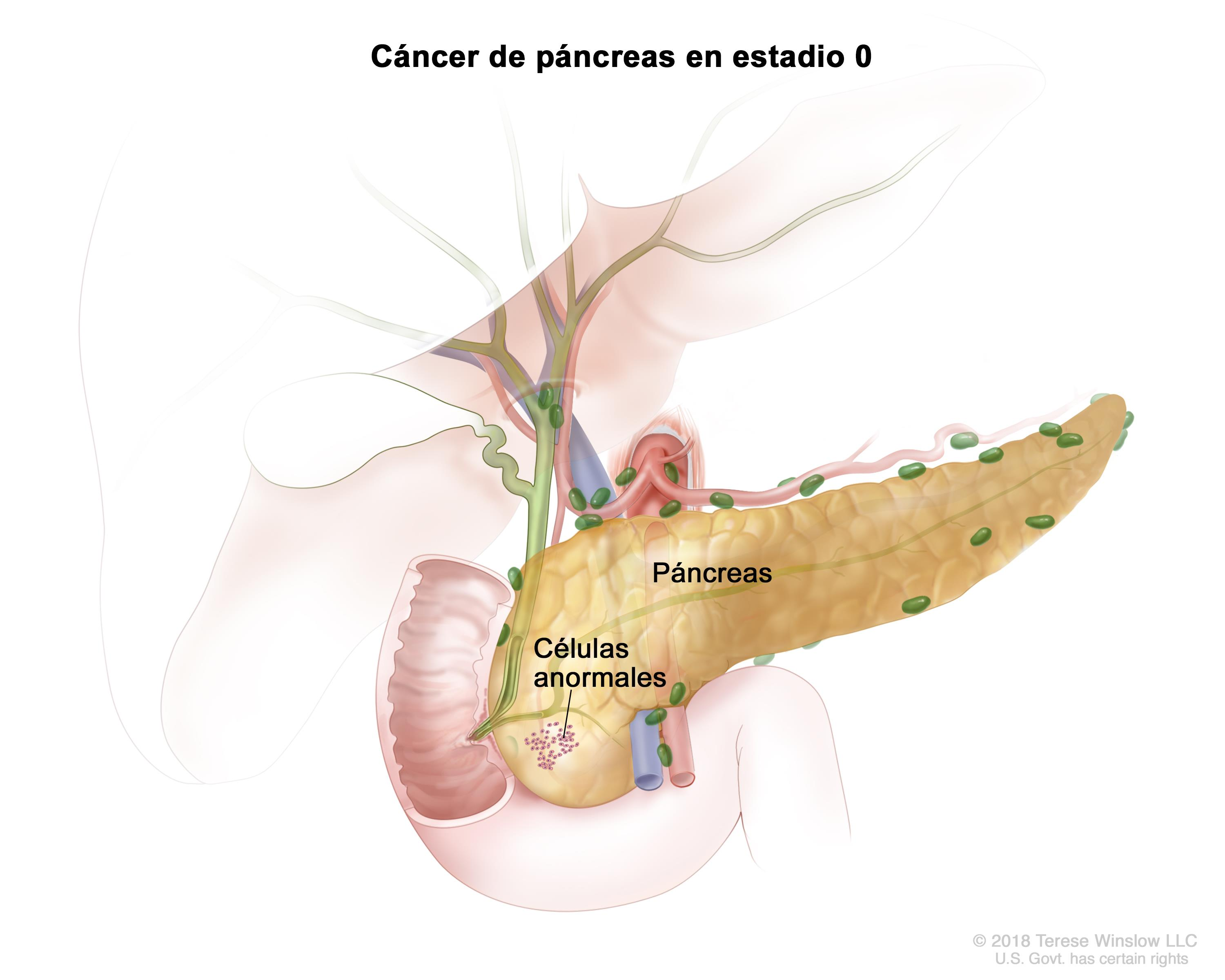 cancer renal auge cancer unghii piele