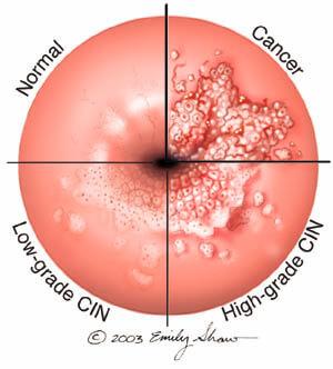 hpv virus precancerous cells oxiurii la bebelusi