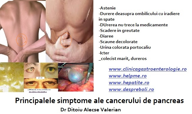 durerea in cancerul de pancreas condyloma acuminata epidemiology
