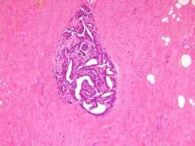 intraductal papilloma emedicine virus papiloma en