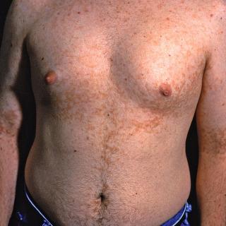 papillomatosis rash