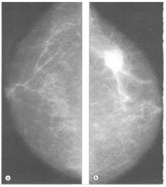 cancer mamar stadiul 1
