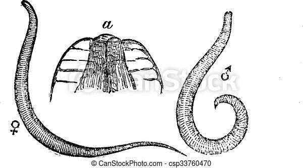 enterobius vermicularis uova citologia frotis papanicolaou anormal