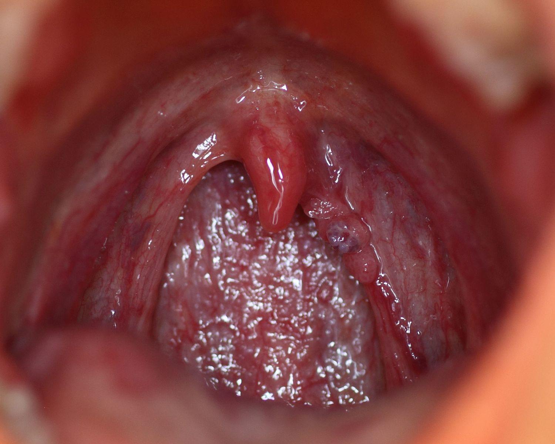 papillomavirus nez