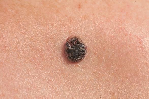 Cancerul de piele, preventie, simptome si tratament - Farmacia Alphega